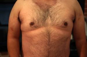 fra_my-chest-before